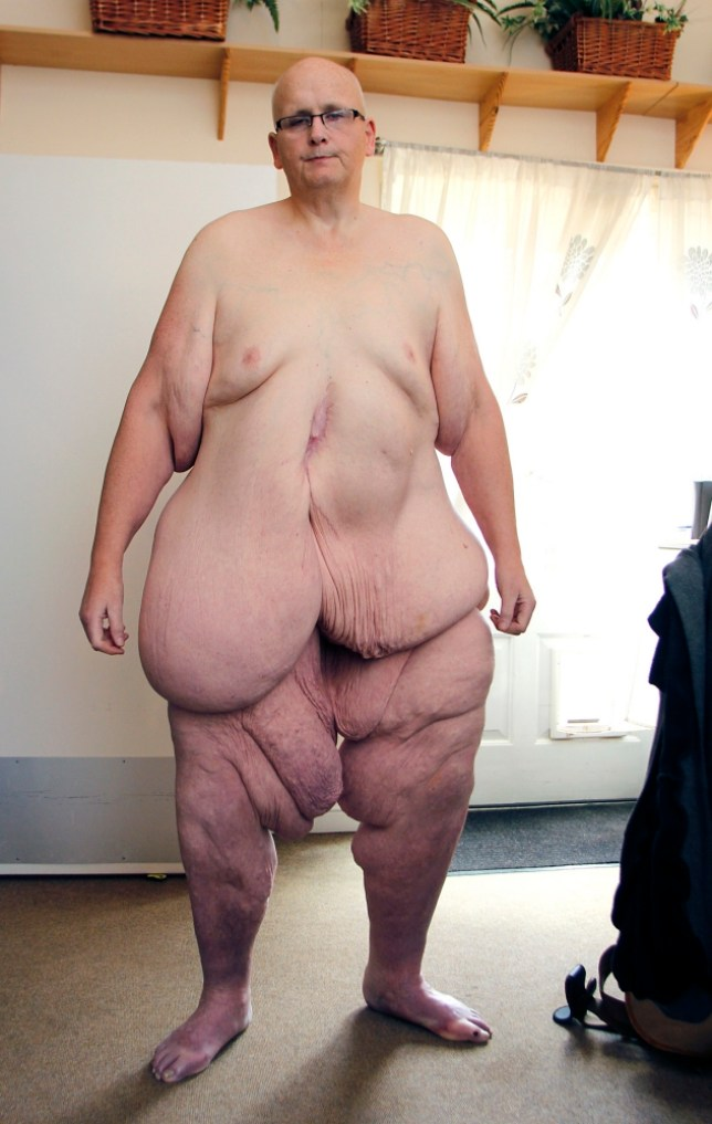 Fattest woman poses naked